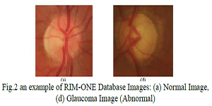 UMST-Glaucoma-Detection-Based-On-Shape-Features-and-SMOTE-Algorithm2018